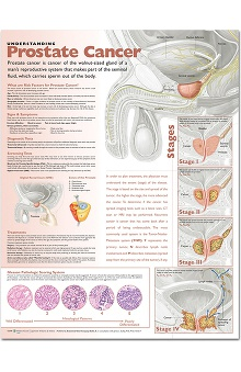 Anatomical Chart Company Prostate Cancer Anatomical Chart