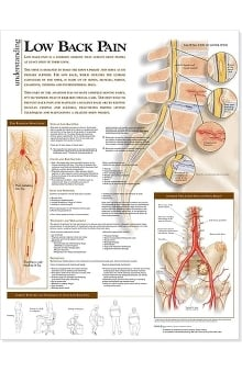 Anatomical Chart Company Low Back Pain Anatomical Chart