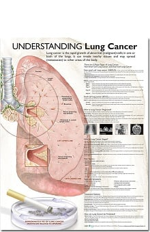 Anatomical Chart Company Lung Cancer Anatomical Chart