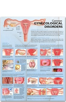 Anatomical Chart Company Common Gynecological Disorders Anatomical Chart