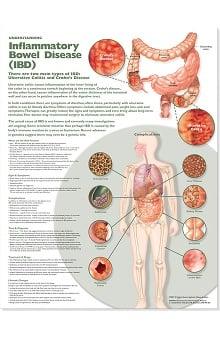 Anatomical Chart Company Inflammatory Bowel Disease Anatomical Chart