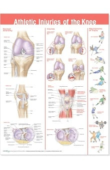 Anatomical Chart Company Athletic Injuries Of The Knee Anatomical Chart