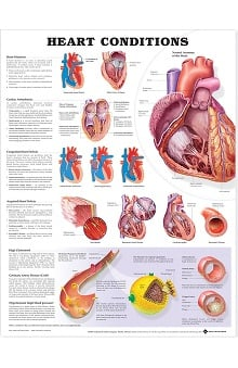 Anatomical Chart Company Heart Conditions Anatomical Chart