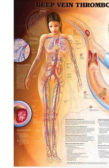 Anatomical Chart Company Deep Vein Thrombosis Anatomical Chart