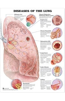 Anatomical Chart Company Diseases Of The Lung Anatomical Chart