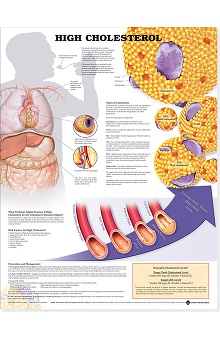 Anatomical Chart Company High Cholesterol Anatomical Chart