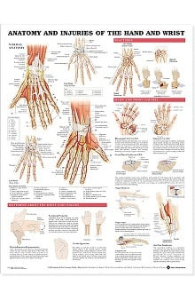 Anatomical Chart Company Anatomy and Injuries Of The Hand And Wrist Anatomical Laminated Chart