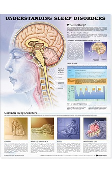 Anatomical Chart Company Sleep Disorders Anatomical Chart