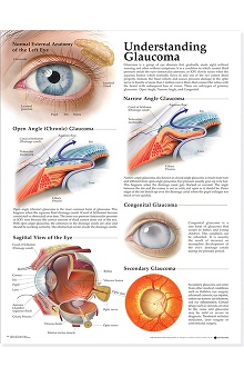 Anatomical Chart Company Glaucoma Anatomical Chart