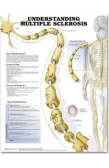 Anatomical Chart Company Multiple Sclerosis Anatomical Chart