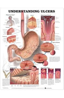 Anatomical Chart Company Understanding Ulcers Anatomical Chart