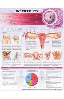 Anatomical Chart Company Infertility Anatomical Chart