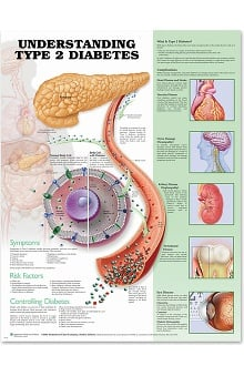Anatomical Chart Company Type 2 Diabetes Anatomical Chart