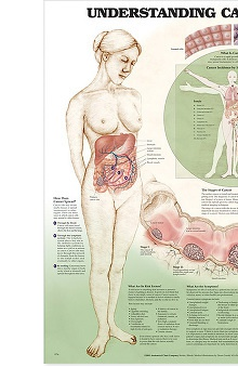 Anatomical Chart Company Understanding Cancer Anatomical Chart