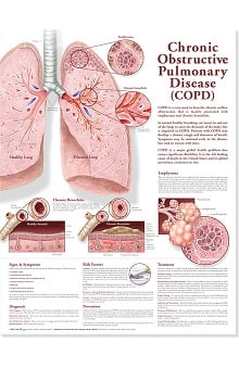 Anatomical Chart Company Chronic Obstructive Pulmonary Disease Anatomical Chart