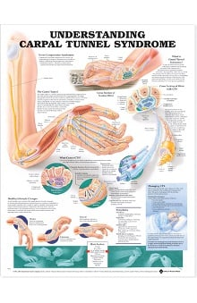 Anatomical Chart Company Understanding Carpal Tunnel Syndrome Anatomical Chart
