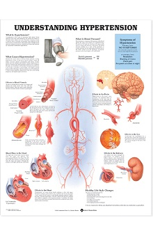 Anatomical Chart Company Understanding Hypertension Anatomical Chart