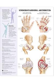 Anatomical Chart Company Arthritis Anatomical Chart