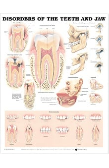 Anatomical Chart Company Disorders Of The Teeth And Jaw Anatomical Chart