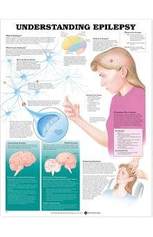Anatomical Chart Company Understanding Epilepsy Anatomical Chart