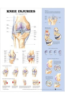 Anatomical Chart Company Knee Injuries Anatomical Chart