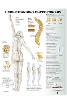 Anatomical Chart Company Understanding Osteoporosis Anatomical Chart