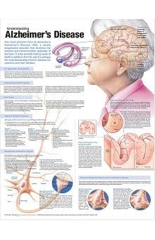 Anatomical Chart Company Understanding Alzheimer's Anatomical Chart