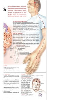 Anatomical Chart Company Parkinson's Disease Anatomical Chart