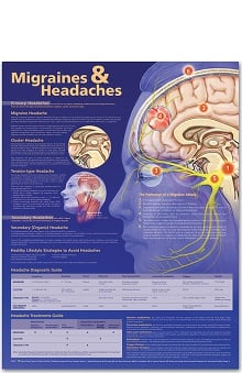 Anatomical Chart Company  Migraines And Headaches Anatomical Chart