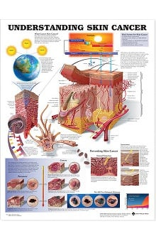 Anatomical Chart Company Understanding Skin Cancer Anatomical Chart