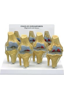 Anatomical Chart Company 4 Stage Osteoarthritis Model