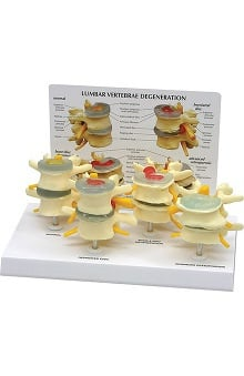Anatomical Chart Company Four Stage Vertebrae Model