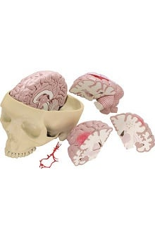 Anatomical Chart Company Diseased Brain Model