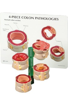 Anatomical Chart Company 4 Piece Colon Set with Pathologies