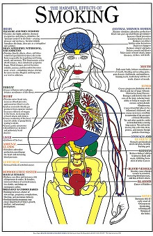 Anatomical Chart Company Harmful Effects Of Smoking Laminated Chart