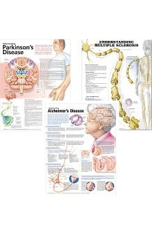 Anatomical Chart Company Neurology Three-Chart Set: Understanding Multiple Sclerosis, Understanding Parkinson's Disease, and Understanding Alzheimer's Disease