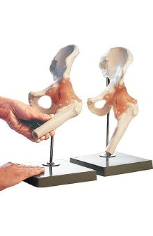 Anatomical Chart Company Functional Model Of Hip Joint