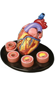 Anatomical Chart Company Heart Conditions Model