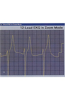 Cardionics Learning Electrocardiography (Ecg) CD-ROM Software