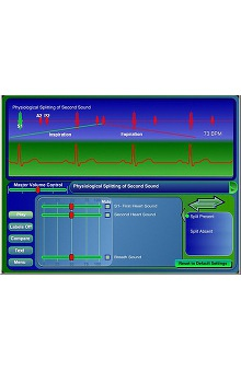 Cardionics Learning Cardiac Auscultation CD-ROM Software