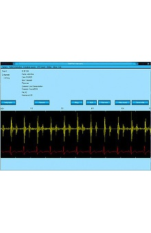 Clearance Cardionics Stethview PC Software For Use with E-Scope II, Auscultate, And/Or Simulscope - Win 98