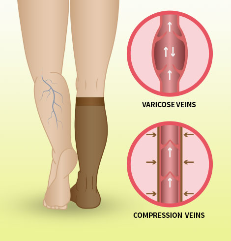 Diagram illustrating how wearing compression socks can improve blood flow