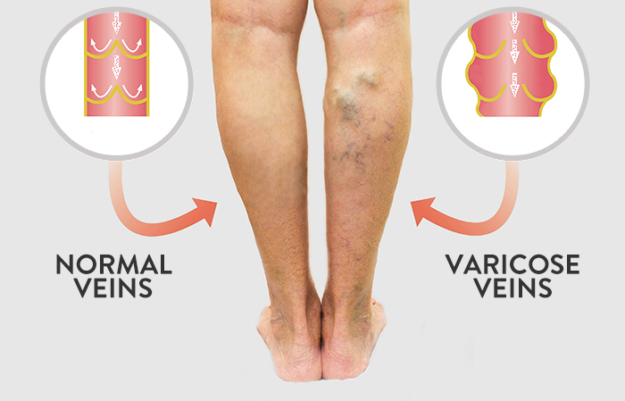 Illustration of difference between normal veins and varicose veins