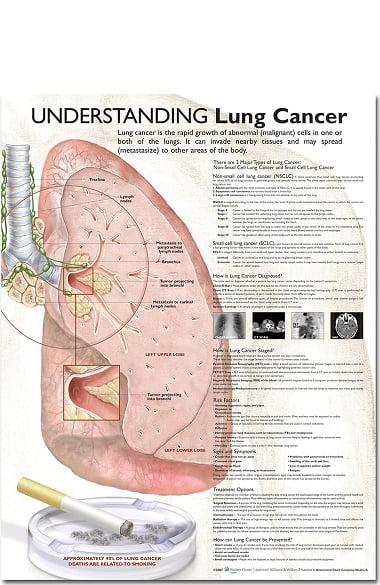 Anatomical Chart Company Lung Cancer Anatomical Chart | allheart.com