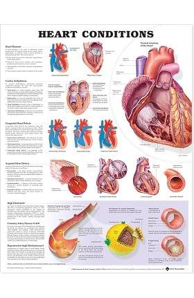 Anatomical Chart Company Heart Conditions Anatomical Chart