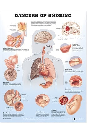 Anatomical Chart Company Dangers Of Smoking Anatomical Chart