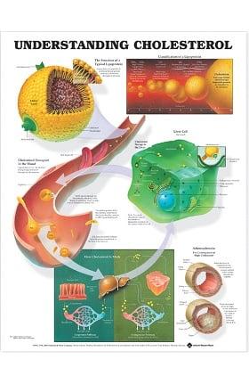 Anatomical Chart Company Understanding Cholesterol Anatomical Chart