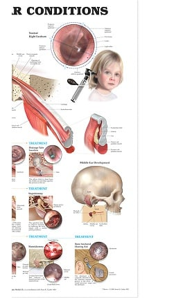 Anatomical Chart Company Middle Ear Conditions Anatomical Chart