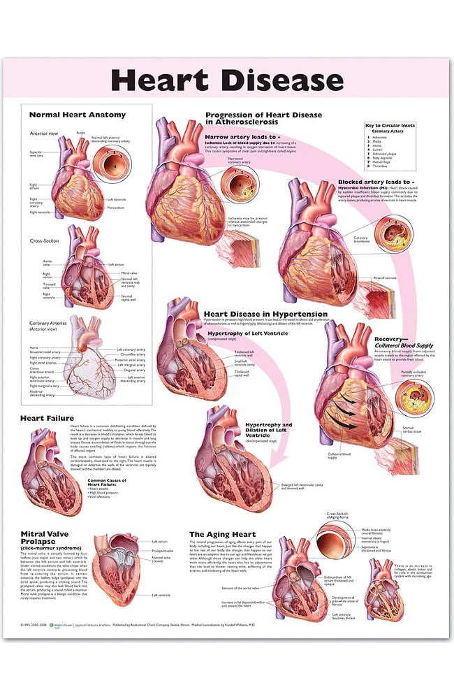 Anatomical Chart Company Heart Disease Anatomical Chart | allheart.com