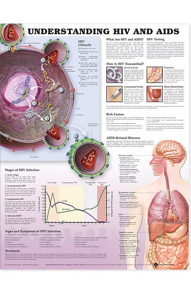 Anatomical Chart Company HIV and AIDS Anatomical Chart | allheart.com